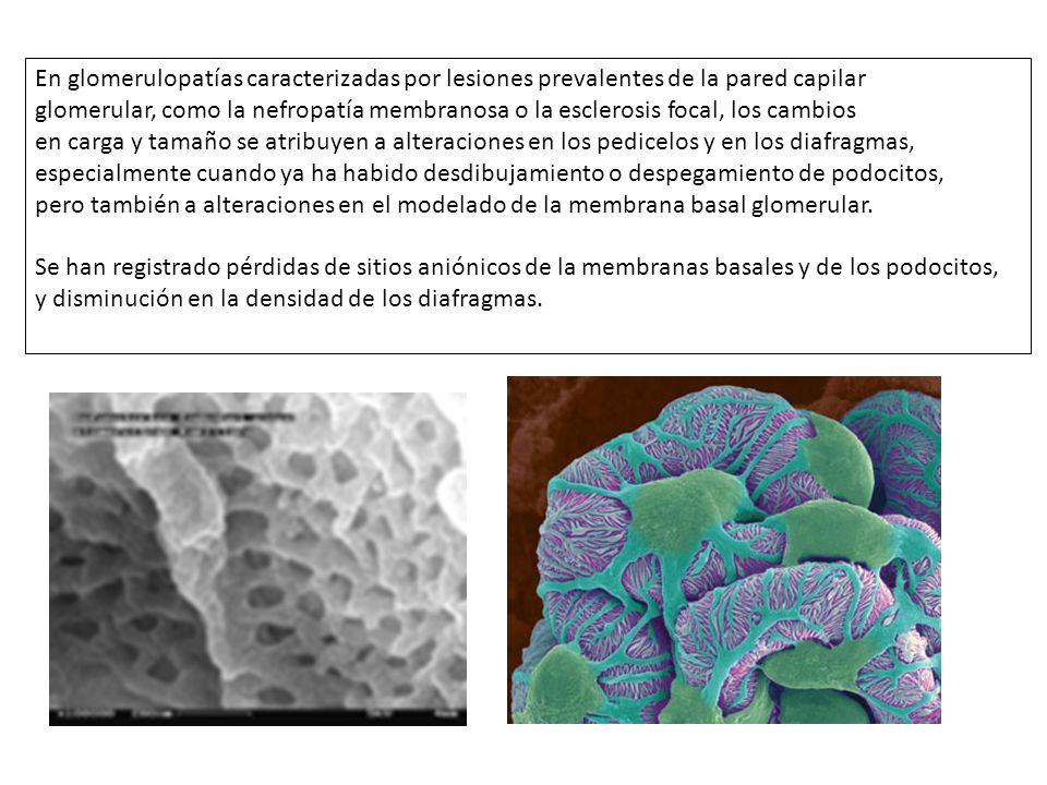 En glomerulopatías caracterizadas por lesiones prevalentes de la pared capilar glomerular, como la nefropatía membranosa o la esclerosis focal, los ca