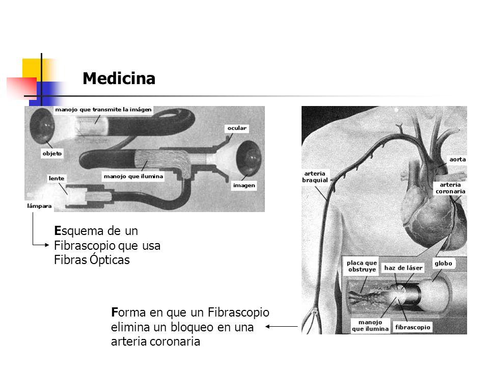 Medicina Esquema de un Fibrascopio que usa Fibras Ópticas Forma en que un Fibrascopio elimina un bloqueo en una arteria coronaria