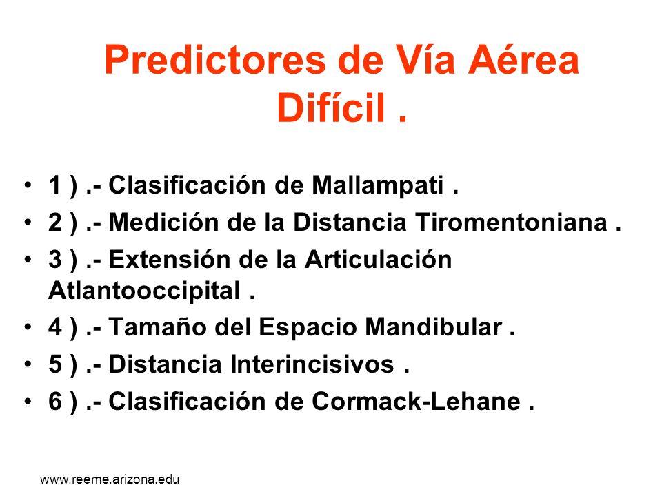 www.reeme.arizona.edu Predictores de Vía Aérea Difícil. 1 ).- Clasificación de Mallampati. 2 ).- Medición de la Distancia Tiromentoniana. 3 ).- Extens
