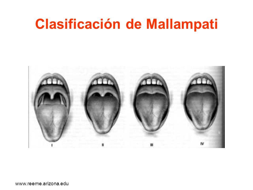 www.reeme.arizona.edu Clasificación de Mallampati