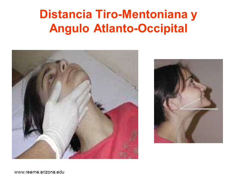 www.reeme.arizona.edu Distancia Tiro-Mentoniana y Angulo Atlanto-Occipital