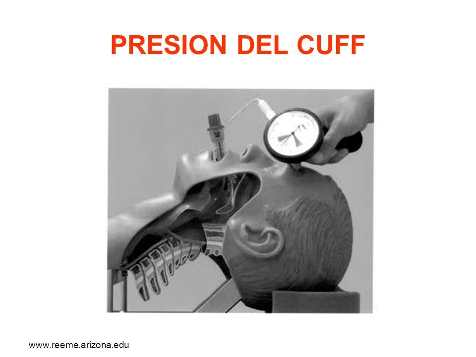 www.reeme.arizona.edu PRESION DEL CUFF