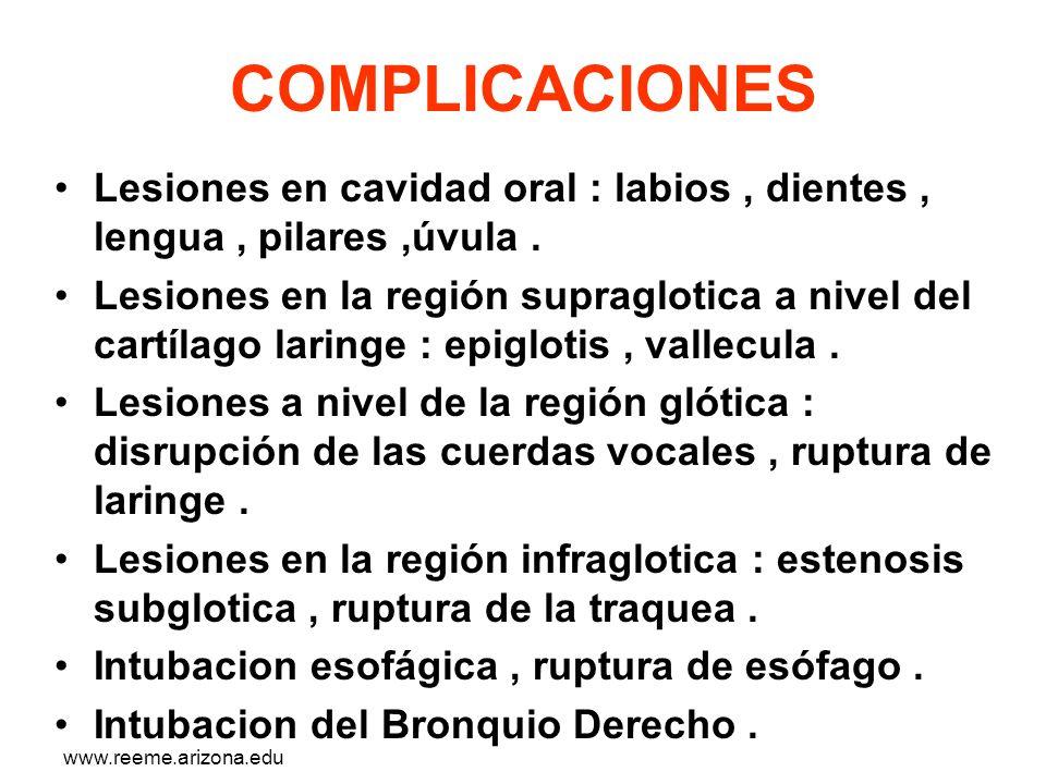 www.reeme.arizona.edu COMPLICACIONES Lesiones en cavidad oral : labios, dientes, lengua, pilares,úvula. Lesiones en la región supraglotica a nivel del