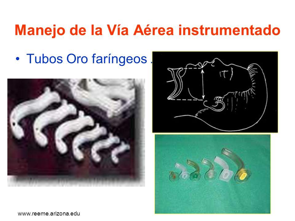Manejo de la Vía Aérea instrumentado Tubos Oro faríngeos.-