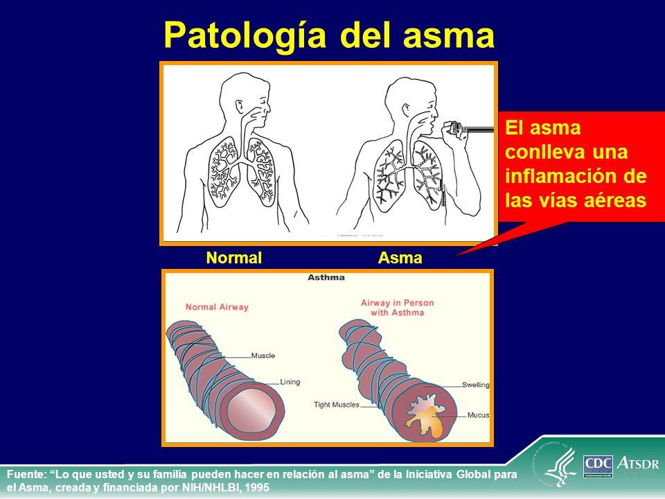 Patología del asma Fuente: Lo que usted y su familia pueden hacer en relación al asma de la Iniciativa Global para el Asma, creada y financiada por NI