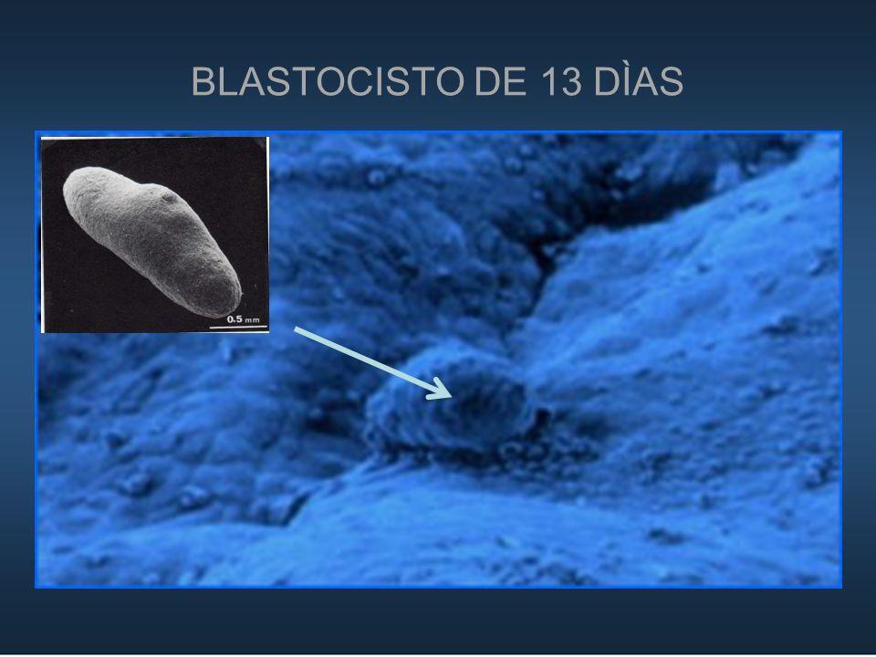 BLASTOCISTO DE 13 DÌAS