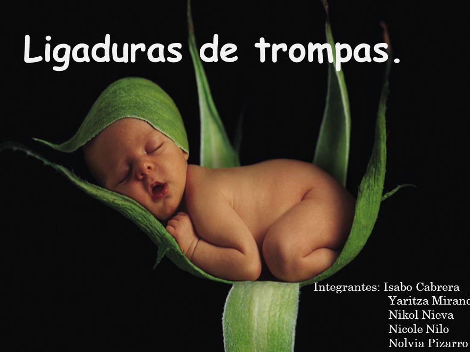 L IGADURAS DE TROMPAS Integrantes: Isabo Cabrera Yaritza Miranda Nikol Nieva Nicole Nilo Nolvia Pizarro Ligaduras de trompas.