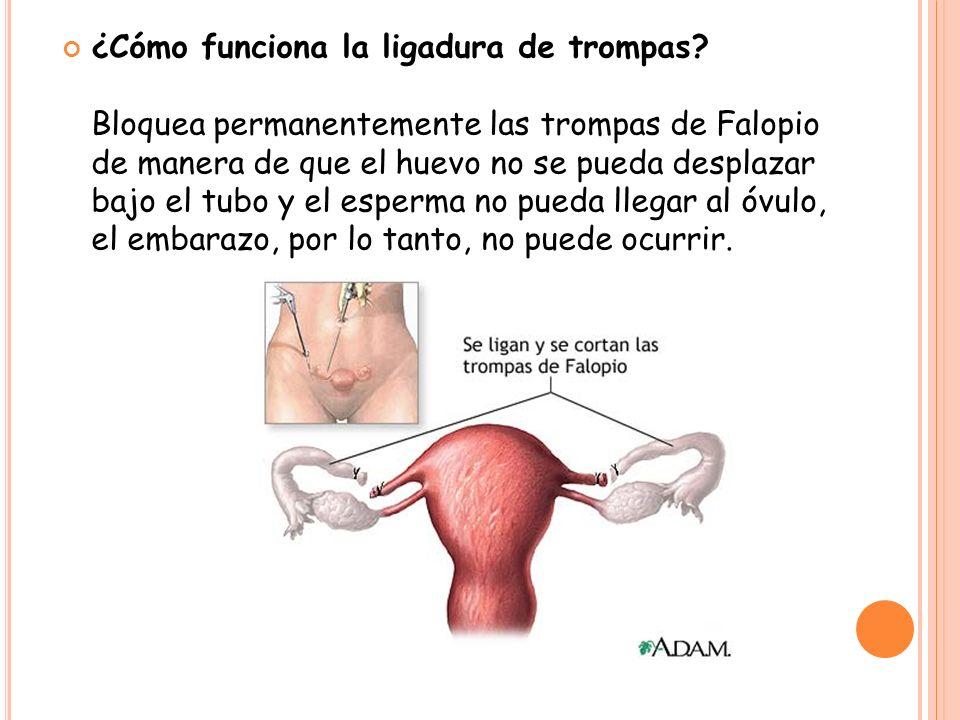 ¿Cómo funciona la ligadura de trompas? Bloquea permanentemente las trompas de Falopio de manera de que el huevo no se pueda desplazar bajo el tubo y e