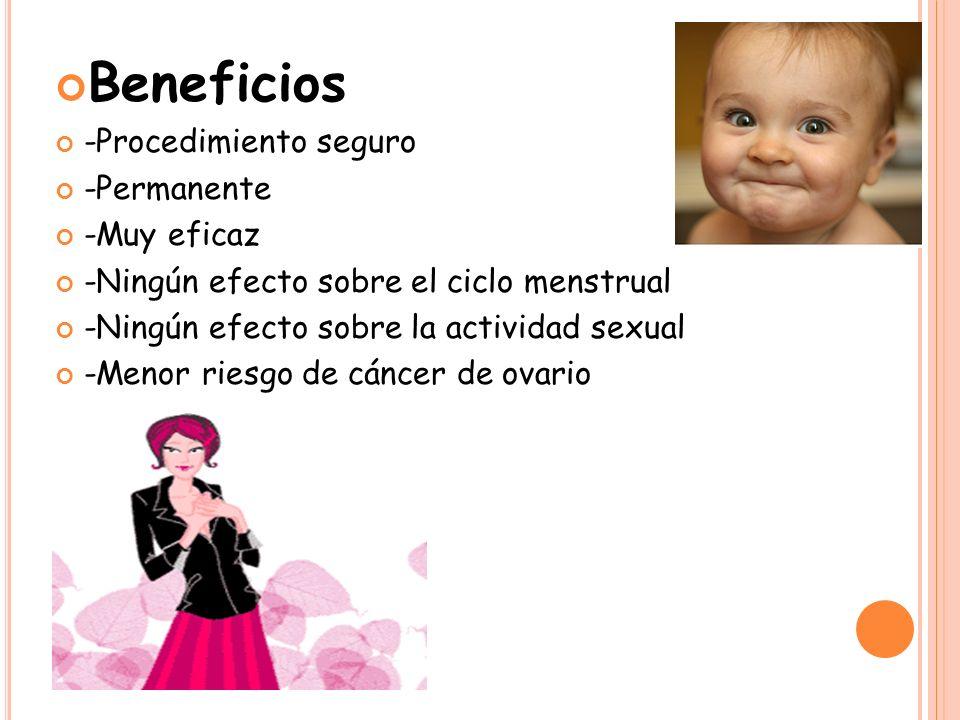 Beneficios -Procedimiento seguro -Permanente -Muy eficaz -Ningún efecto sobre el ciclo menstrual -Ningún efecto sobre la actividad sexual -Menor riesgo de cáncer de ovario