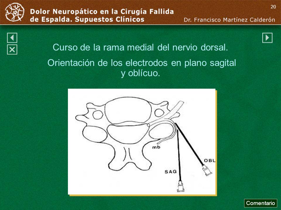 Curso de la rama medial del nervio dorsal. Orientación de los electrodos en plano sagital y oblícuo. Comentario 20