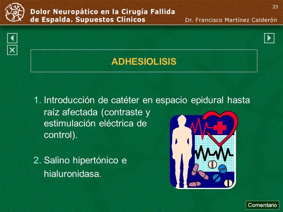 ADHESIOLISIS 1. Introducción de catéter en espacio epidural hasta raíz afectada (contraste y estimulación eléctrica de control). 2. Salino hipertónico