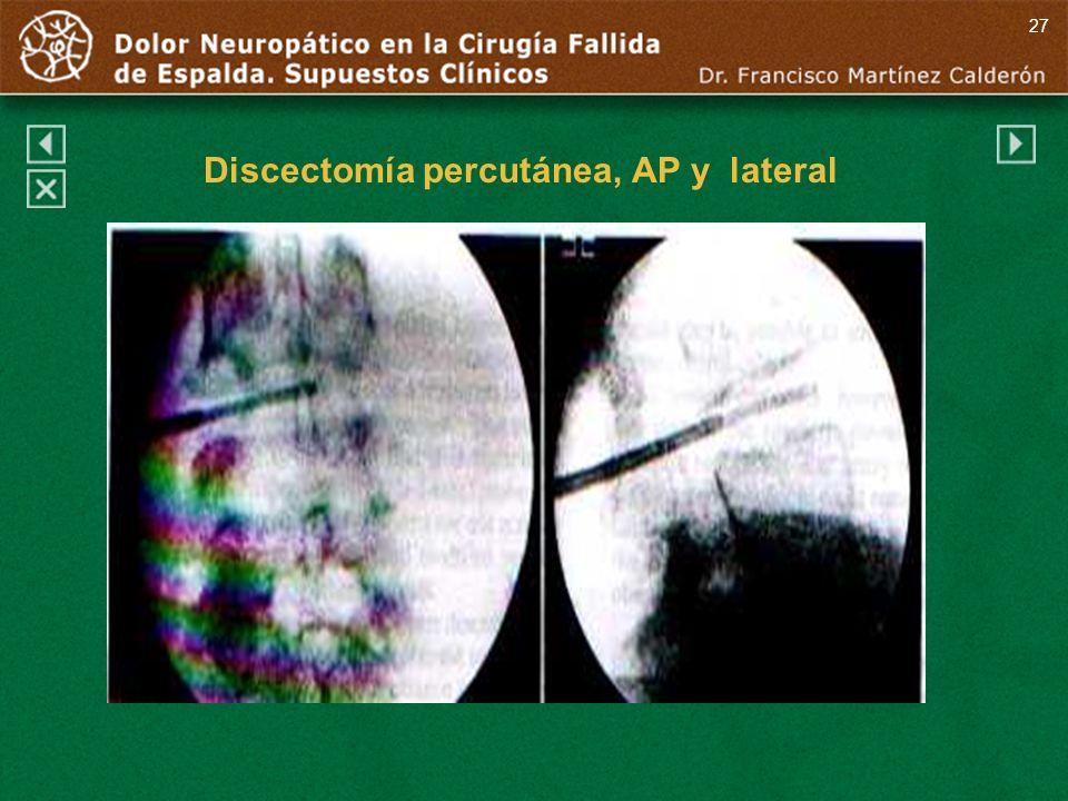 Discectomía percutánea, AP y lateral 27