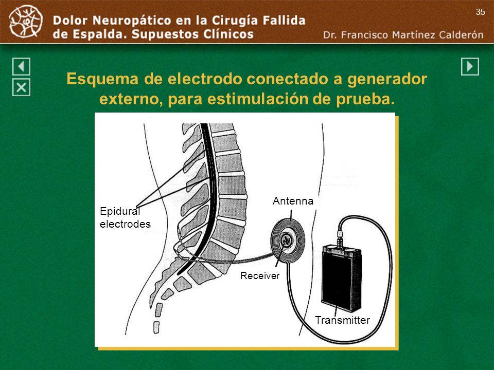 Antenna Receiver Transmitter Epidural electrodes 35 Esquema de electrodo conectado a generador externo, para estimulación de prueba.