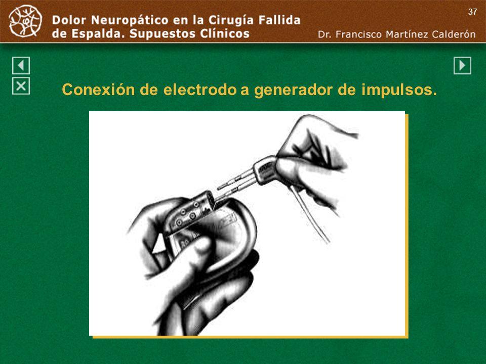 37 Conexión de electrodo a generador de impulsos.