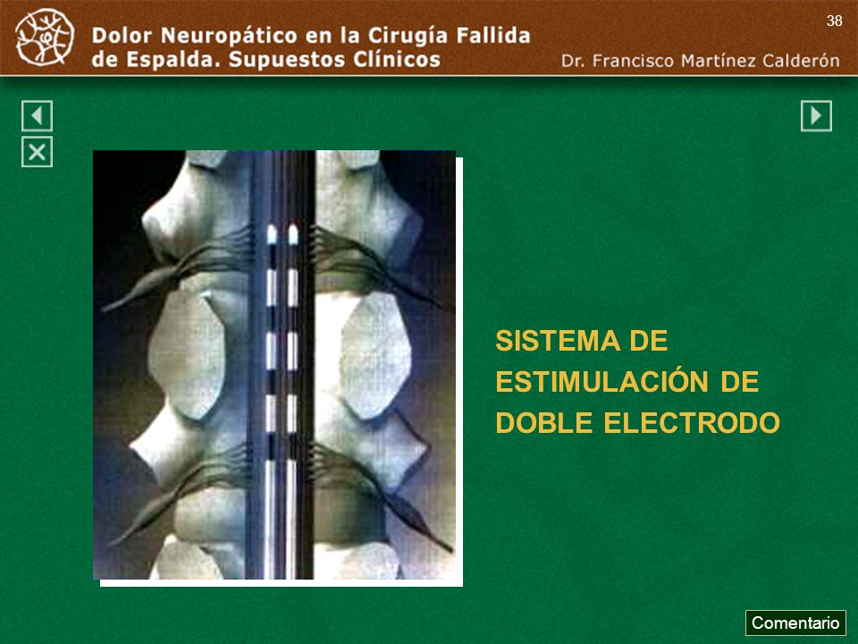 SISTEMA DE ESTIMULACIÓN DE DOBLE ELECTRODO Comentario 38