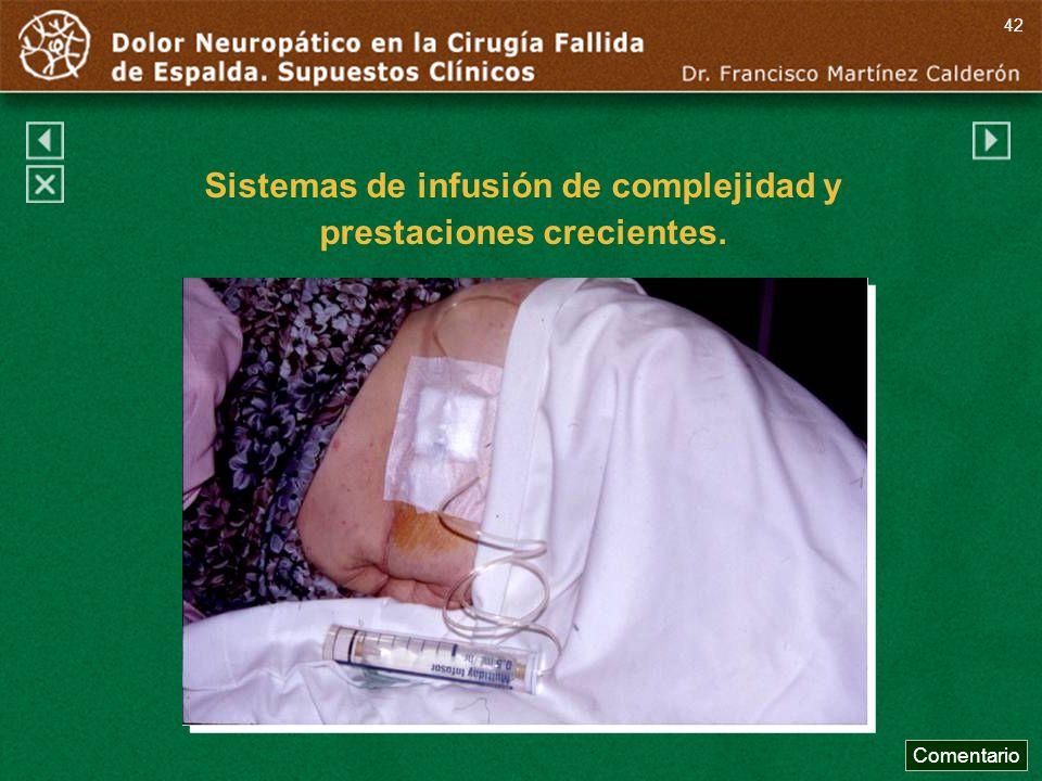 Comentario 42 Sistemas de infusión de complejidad y prestaciones crecientes.