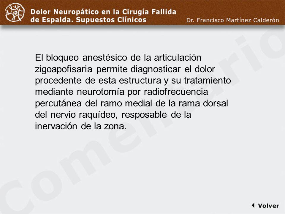 Comentario a diapo20/21 El bloqueo anestésico de la articulación zigoapofisaria permite diagnosticar el dolor procedente de esta estructura y su trata