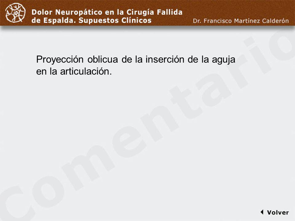 Comentario a diapo22 Proyección oblicua de la inserción de la aguja en la articulación.