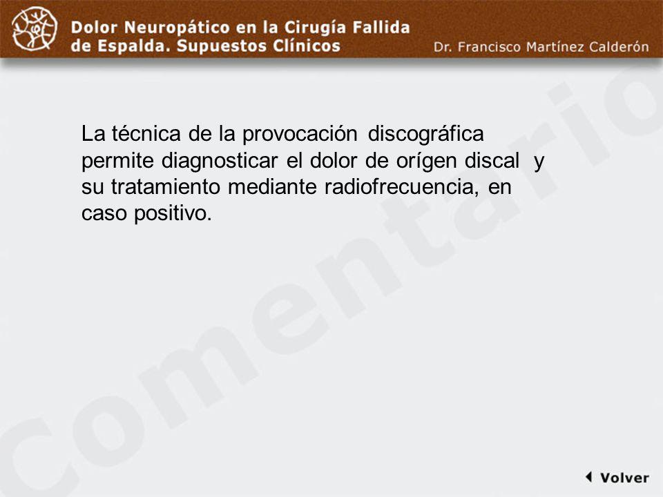 Comentario a diapo25 La técnica de la provocación discográfica permite diagnosticar el dolor de orígen discal y su tratamiento mediante radiofrecuenci