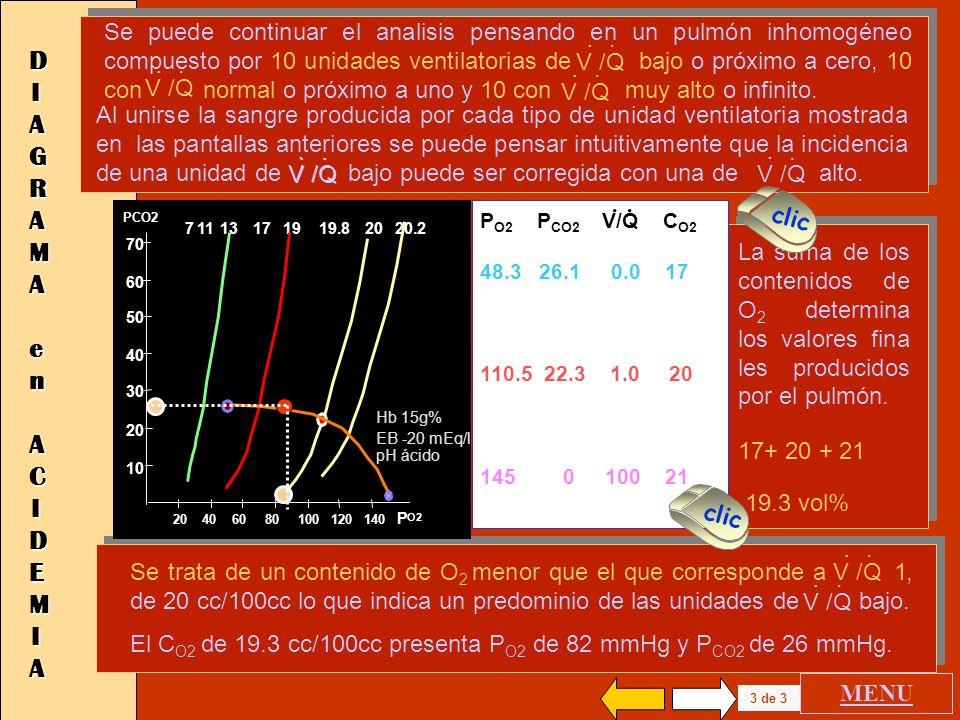 20 40 60 80 100 120 140 P O2 70 60 50 40 30 20 10 P CO2 172019.819711 13 20.2 2 de 3 DIAGRAMADIAGRAMA en ACIDEMIA en ACIDEMIADIAGRAMADIAGRAMA en ACIDE