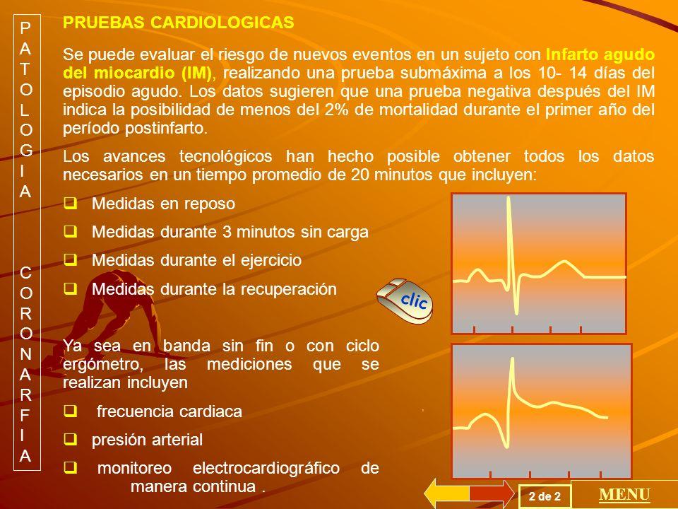 Se puede evaluar el riesgo de nuevos eventos en un sujeto con Infarto agudo del miocardio (IM), realizando una prueba submáxima a los 10- 14 días del episodio agudo.