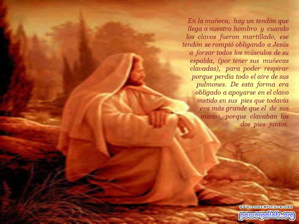 LA MUERTE (CIENTIFICA) DE JESUS A los 33 años Jesús fue condenado a muerte. La peor muerte de la época. Sólo los peores criminales murieron como Jesús