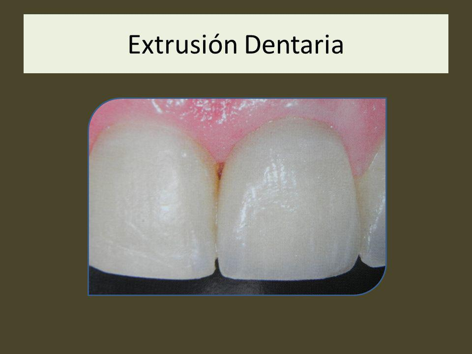 Extrusión Dentaria