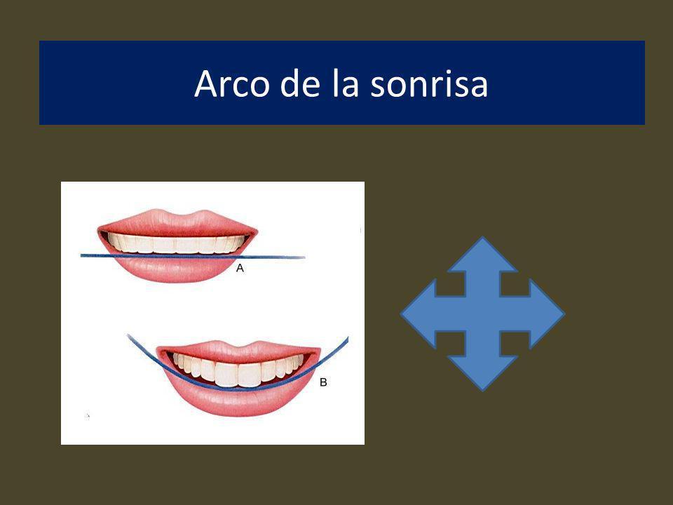 Arco de la sonrisa