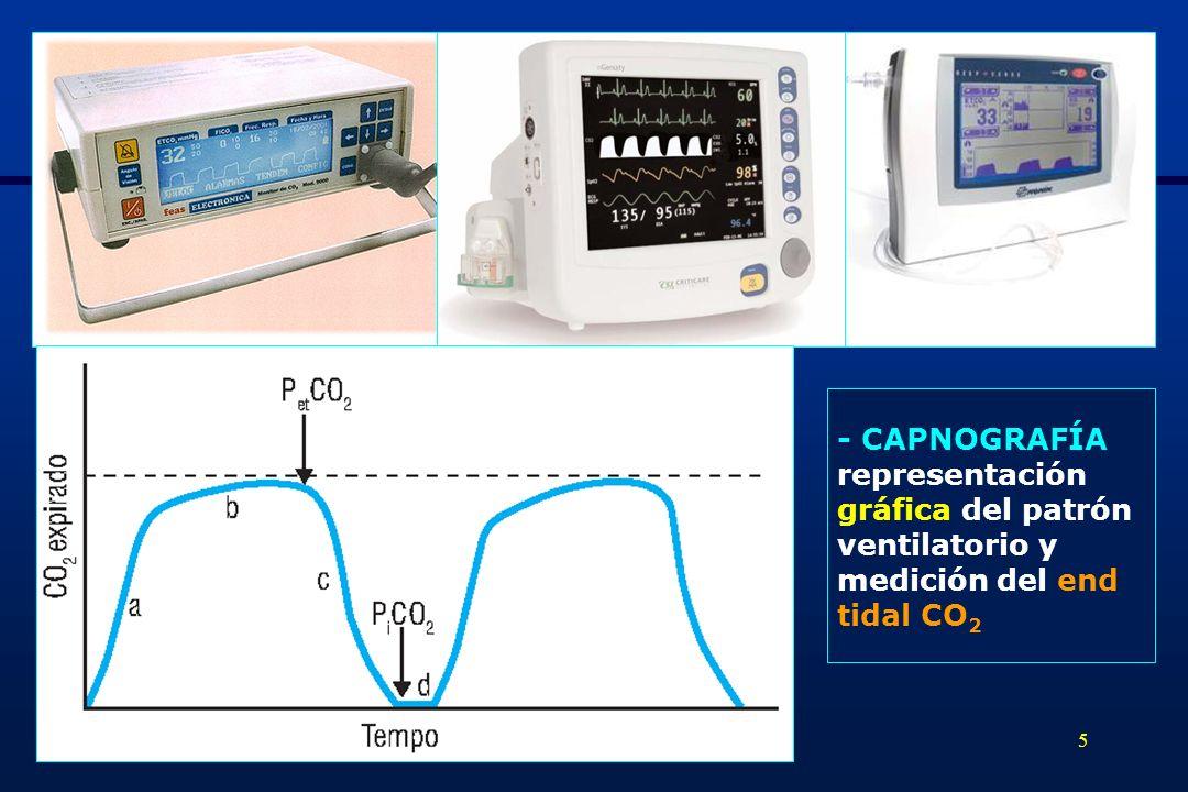 5 - CAPNOGRAFÍA representación gráfica del patrón ventilatorio y medición del end tidal CO 2