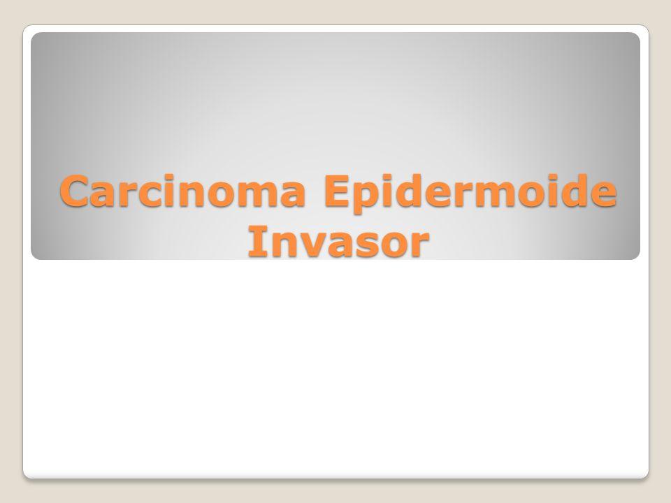 Carcinoma Epidermoide Invasor