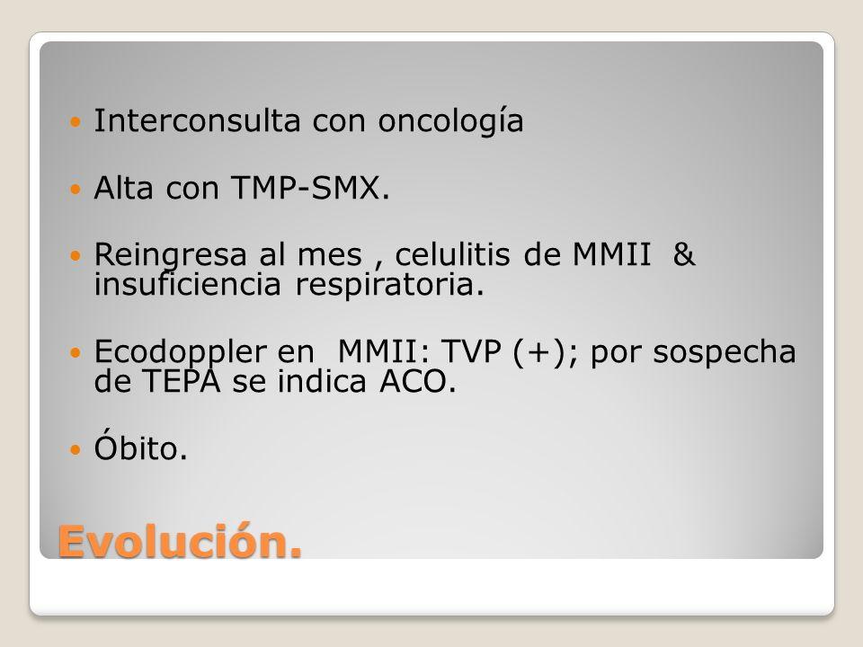 Evolución. Interconsulta con oncología Alta con TMP-SMX.