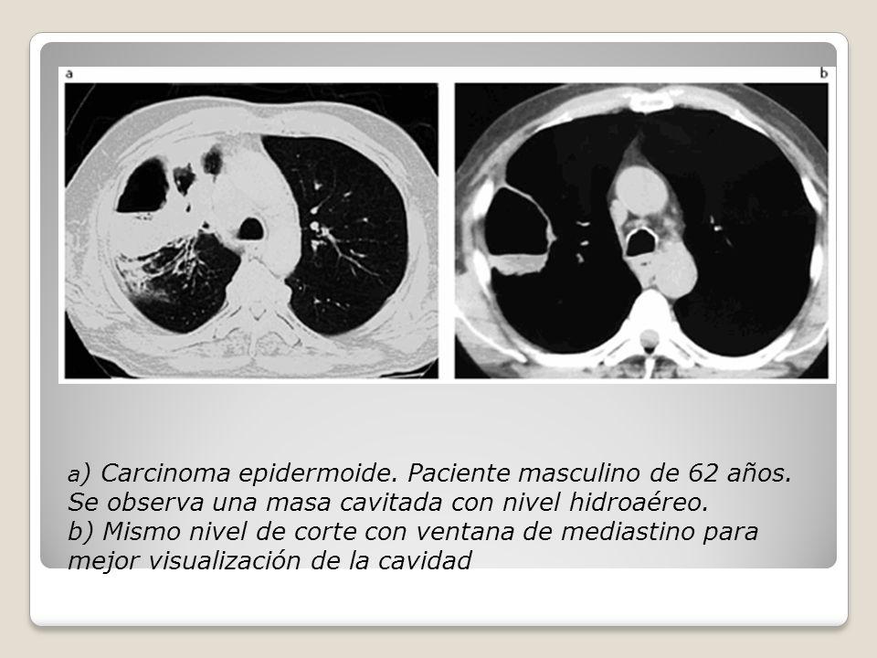 a ) Carcinoma epidermoide. Paciente masculino de 62 años.