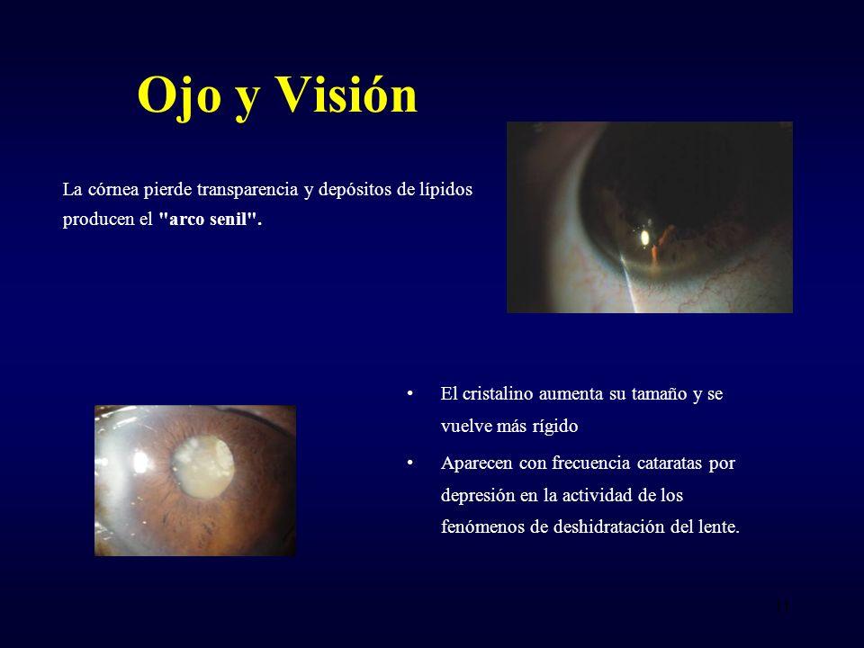 La córnea pierde transparencia y depósitos de lípidos producen el