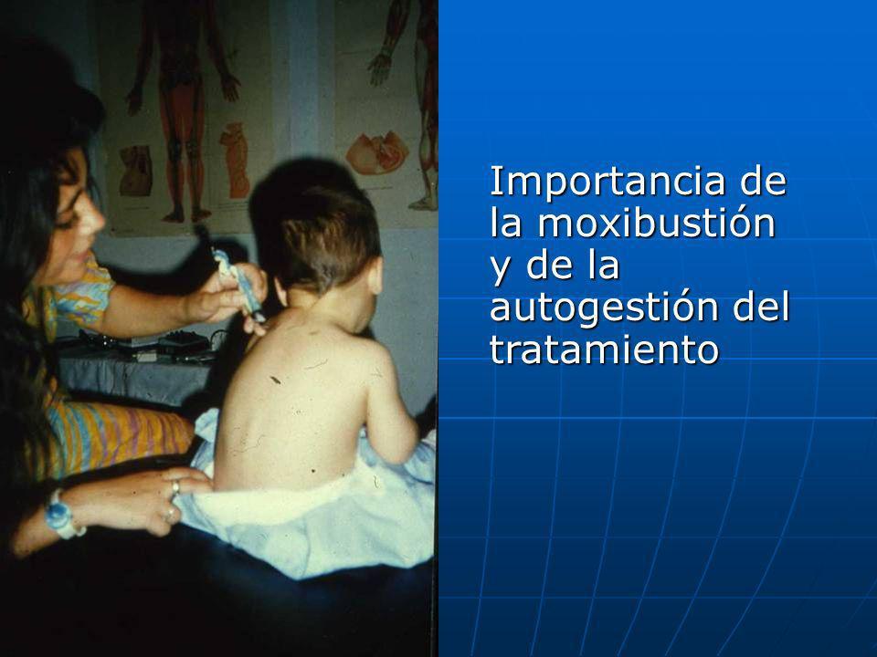 Importancia de la moxibustión y de la autogestión del tratamiento