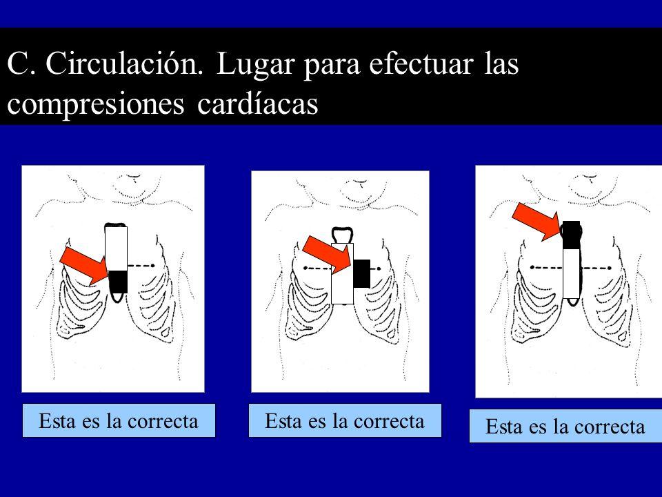 C. Circulación. Lugar para efectuar las compresiones cardíacas Esta es la correcta