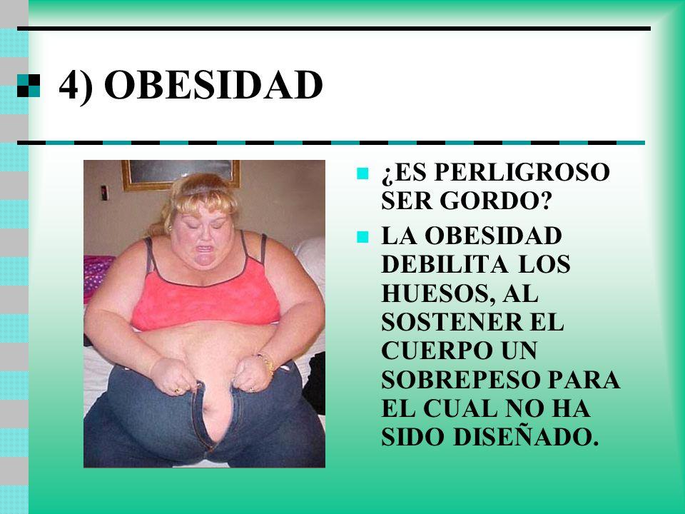 4) OBESIDAD ¿ES PERLIGROSO SER GORDO? LA OBESIDAD DEBILITA LOS HUESOS, AL SOSTENER EL CUERPO UN SOBREPESO PARA EL CUAL NO HA SIDO DISEÑADO.