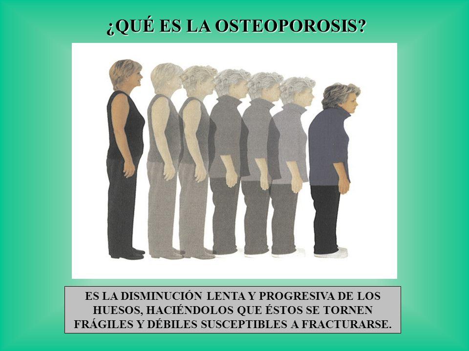 ¿QUÉ ES LA OSTEOPOROSIS? ES LA DISMINUCIÓN LENTA Y PROGRESIVA DE LOS HUESOS, HACIÉNDOLOS QUE ÉSTOS SE TORNEN FRÁGILES Y DÉBILES SUSCEPTIBLES A FRACTUR