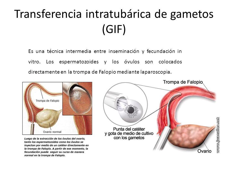 Transferencia intratubárica de gametos (GIF) Es una técnica intermedia entre inseminación y fecundación in vitro. Los espermatozoides y los óvulos son