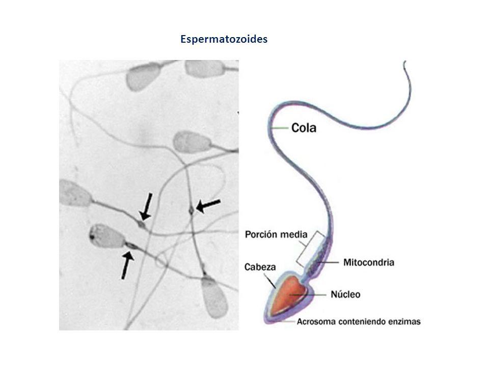 Fecundación in vitro con transferencia de embriones (FIVET) Consiste en la extracción de un óvulo para fecundarlo con esperma en una probeta.