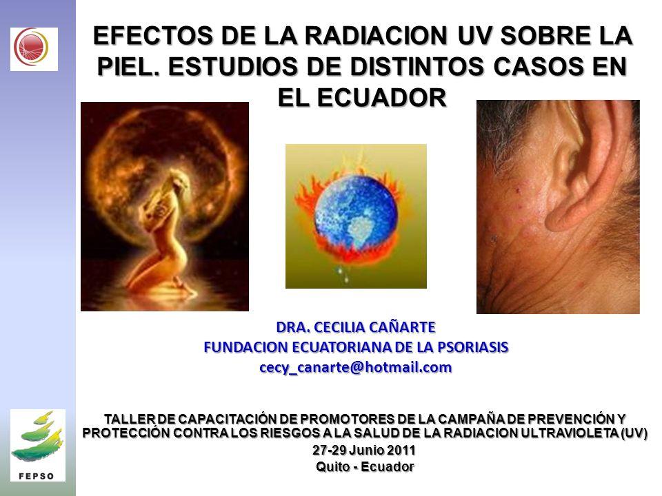 SKIN DISEASES IN FISHERMAN OF THE PACIFIC COAST OF ECUADOR EXPOSED TO ALL YEAR HIGH SOLAR UV RADIATION Cañarte C., Izurieta J., Trujillo R., Castillo P., Valencia N., Cañarte D., Salum G., Piacentini R SKIN DISEASES IN FISHERMAN OF THE PACIFIC COAST OF ECUADOR EXPOSED TO ALL YEAR HIGH SOLAR UV RADIATION Cañarte C., Izurieta J., Trujillo R., Castillo P., Valencia N., Cañarte D., Salum G., Piacentini R.