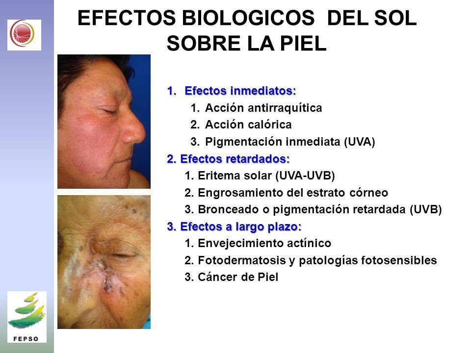 EFECTOS BIOLOGICOS DEL SOL SOBRE LA PIEL 1.Efectos inmediatos: 1.Acción antirraquítica 2.Acción calórica 3.Pigmentación inmediata (UVA) 2.