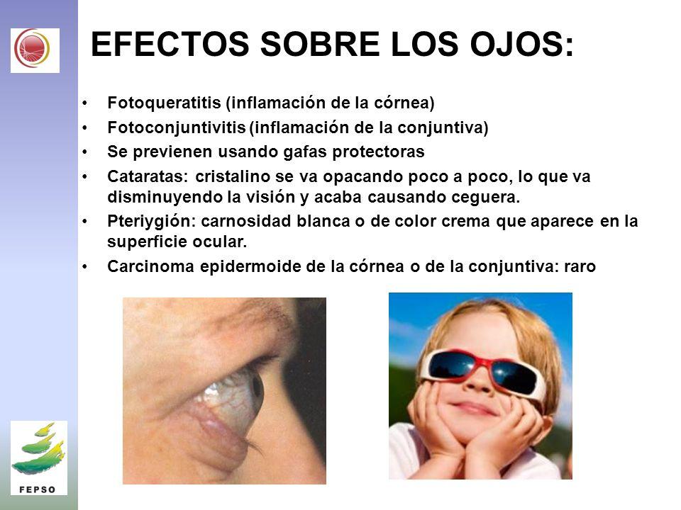 EFECTOS SOBRE LOS OJOS: Fotoqueratitis (inflamación de la córnea) Fotoconjuntivitis (inflamación de la conjuntiva) Se previenen usando gafas protectoras Cataratas: cristalino se va opacando poco a poco, lo que va disminuyendo la visión y acaba causando ceguera.