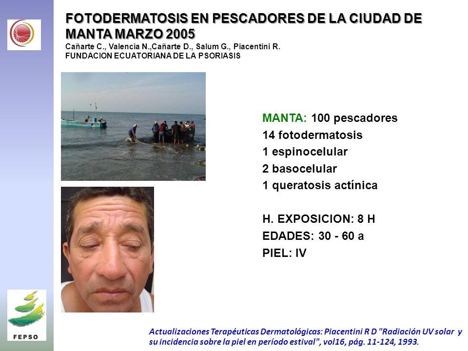 FOTODERMATOSIS EN PESCADORES DE LA CIUDAD DE MANTA MARZO 2005 FOTODERMATOSIS EN PESCADORES DE LA CIUDAD DE MANTA MARZO 2005 Cañarte C., Valencia N.,Cañarte D., Salum G., Piacentini R.