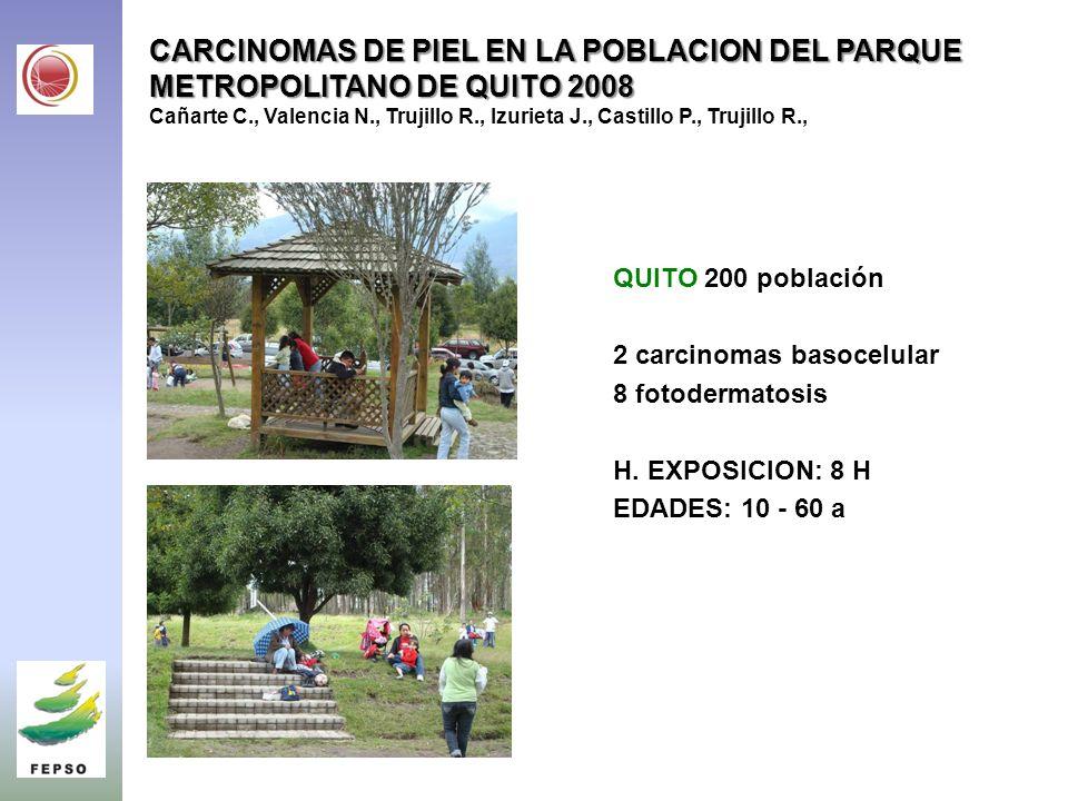 CARCINOMAS DE PIEL EN LA POBLACION DEL PARQUE METROPOLITANO DE QUITO 2008 CARCINOMAS DE PIEL EN LA POBLACION DEL PARQUE METROPOLITANO DE QUITO 2008 Cañarte C., Valencia N., Trujillo R., Izurieta J., Castillo P., Trujillo R., QUITO 200 población 2 carcinomas basocelular 8 fotodermatosis H.