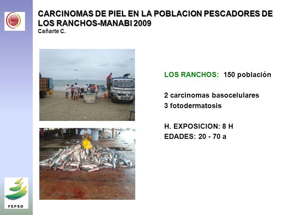 CARCINOMAS DE PIEL EN LA POBLACION PESCADORES DE LOS RANCHOS-MANABI 2009 CARCINOMAS DE PIEL EN LA POBLACION PESCADORES DE LOS RANCHOS-MANABI 2009 Cañarte C.