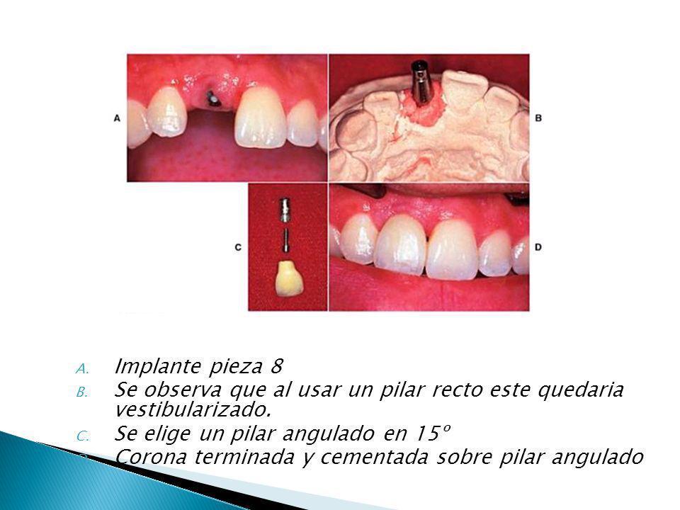 A. Implante pieza 8 B. Se observa que al usar un pilar recto este quedaria vestibularizado. C. Se elige un pilar angulado en 15º D. Corona terminada y