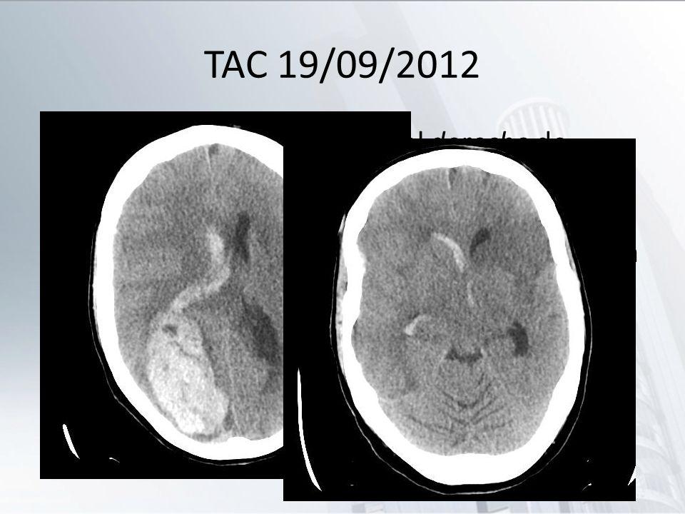 TAC 19/09/2012 Hematoma temporooccipital derecho de 7x2.4x4.4 cm, con componente hemorrágico en cuarto ventrículo, tercer ventrículo y el ventrículo l