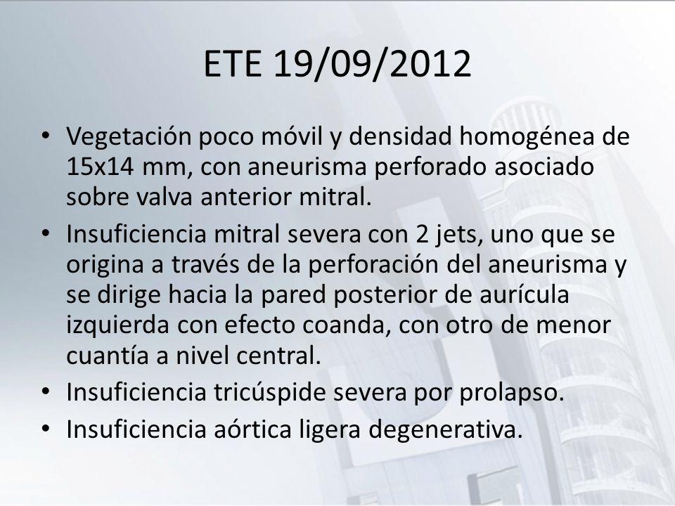 ETE 19/09/2012 Vegetación poco móvil y densidad homogénea de 15x14 mm, con aneurisma perforado asociado sobre valva anterior mitral. Insuficiencia mit