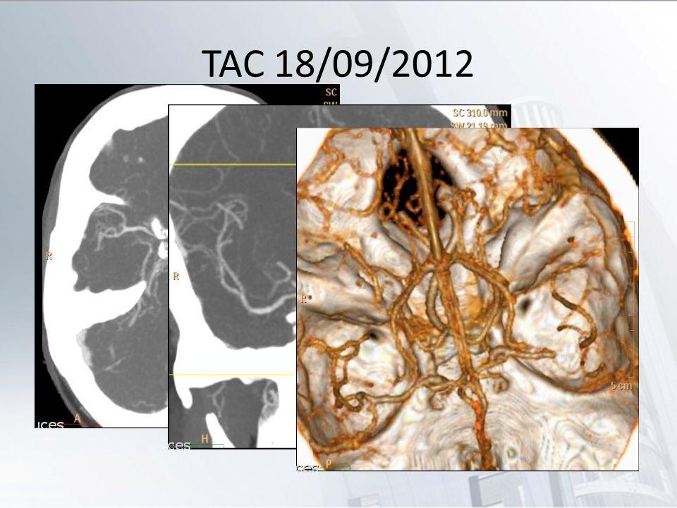 TAC 18/09/2012 Trombo en segmento distal de M1 izquierda. Hipodensidad en territorio de ACM del mismo lado.