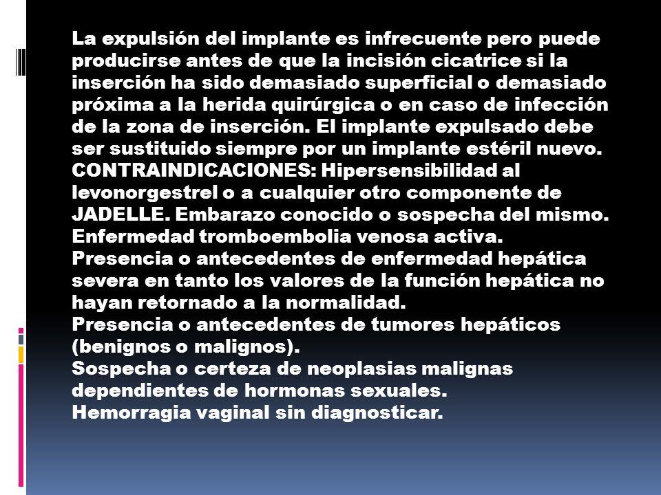 EL DISPOSITIVO INTRUTERINO Es un buen método anticonceptivo si no tiene riesgo de contraer una enfermedad de transmisión sexual.